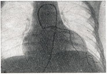 Хроническая аневризма сердца - Все про гипертонию