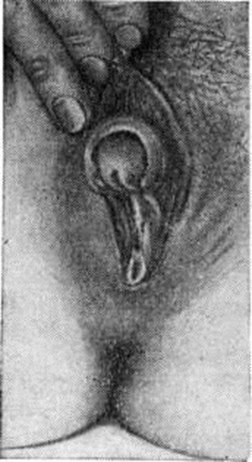 clinical-hermaphrodite