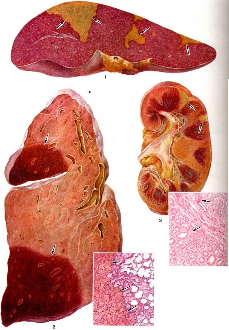 Красный инфаркт это - Лечение гипертонии
