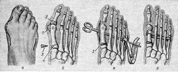 Поперечное плоскостопие в картинках операция